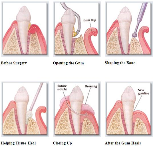 Periodontal Surgery Gum Surgery